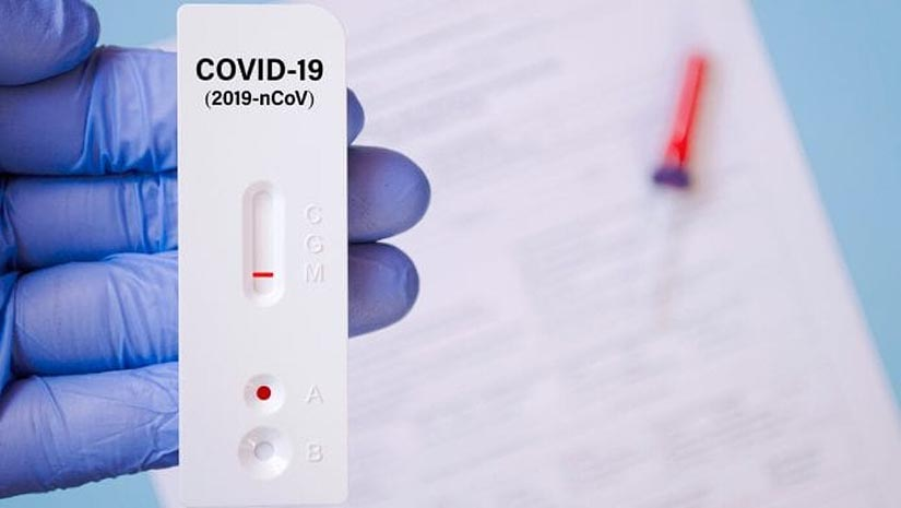 Експрес-тести на COVID-19 тепер можна зробити в закладах первинної меддопомоги - НСЗУ
